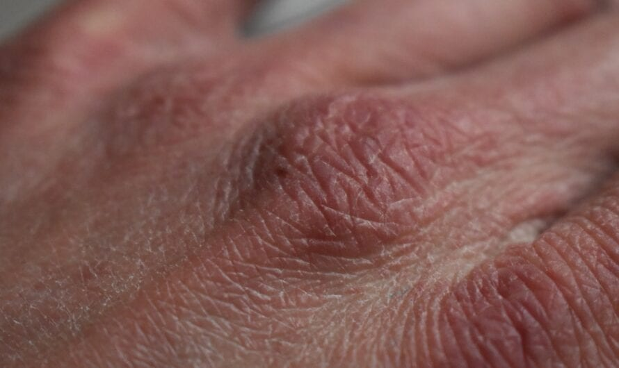 Psoriasis Vs. Eczema: What's the difference?